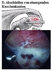 5: Abschleifen von einengenden Knochenkanten