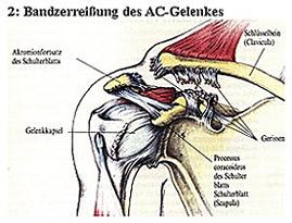 2: Bandzerreißung des AC-Gelenkes