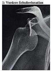1: Vordere Schulterluxation