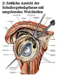 2: Seitliche Ansicht der Schultergelenkpfanne mit umgebenden Weichteilen